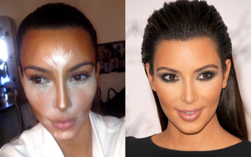 chirurgie visage femme