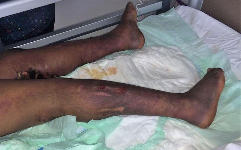 Torturée, une domestique de 22 ans dans un état critique à Casablanca